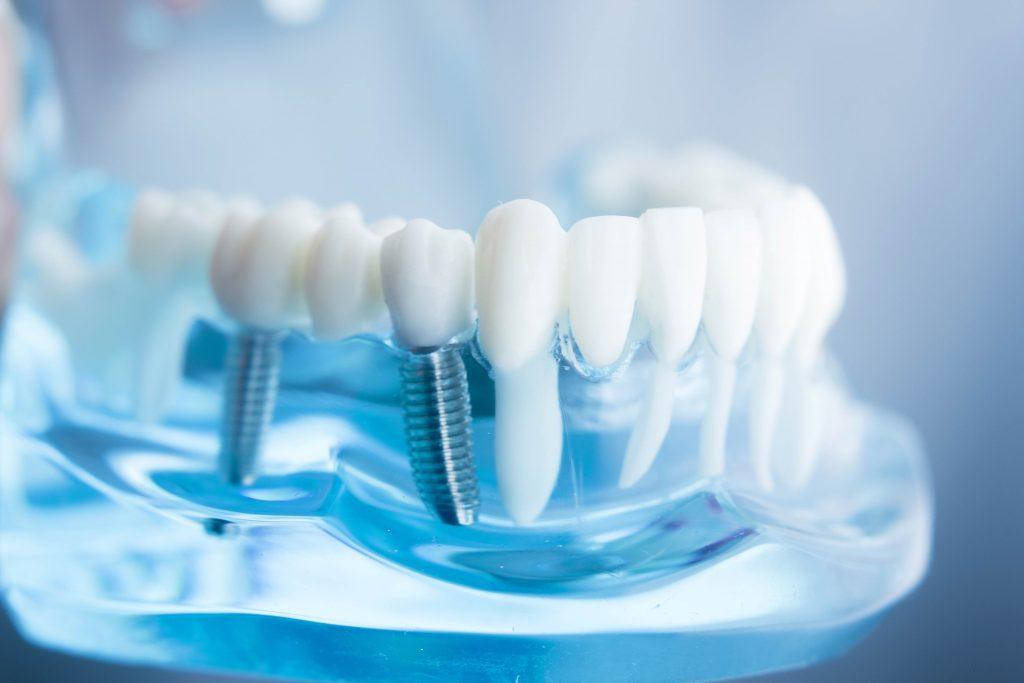 زرع الأسنان في أصفهان