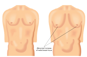 علاج التثدي أو تضخم الثدي عند الرجال في إيران