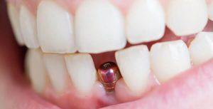 علاج وجع الاسنان بعد زرع الأسنان في إيران