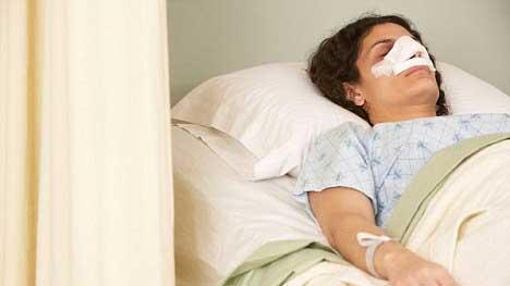 كيف تنام بعد عملية تجميل الانف في طهران