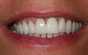 ما هي مدة زراعة الأسنان الأمامية في إيران