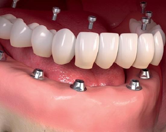 هل يمكن زراعة جميع الاسنان في إيران؟