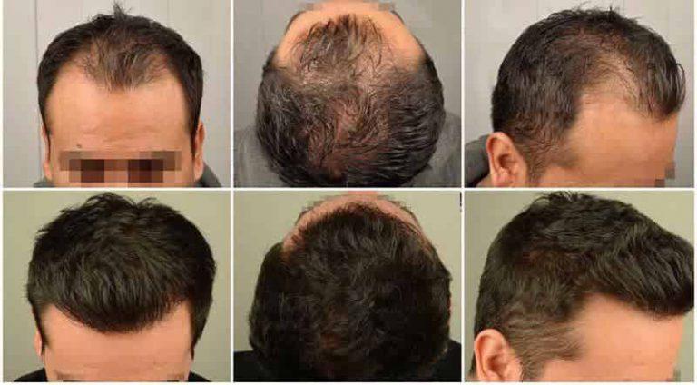 أسباب ظهور تقنيات جديدة لزراعة الشعر