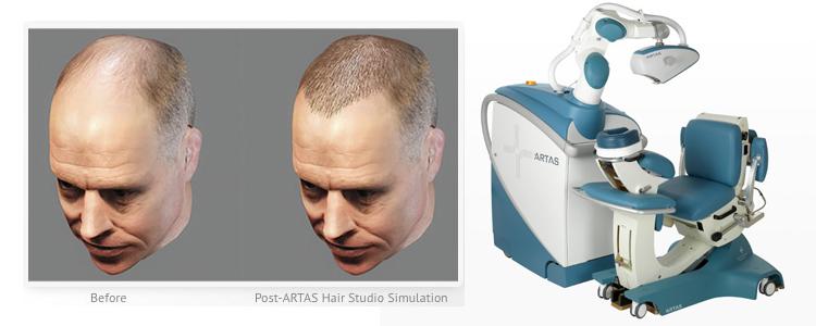 تقنية آرتاس لزراعة الشعر