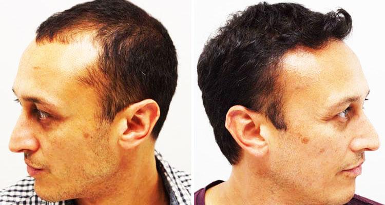 تقنية Micro FIT لزراعة الشعر