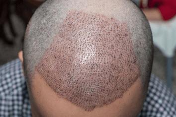 تقنية Micro Graft لزراعة الشعر