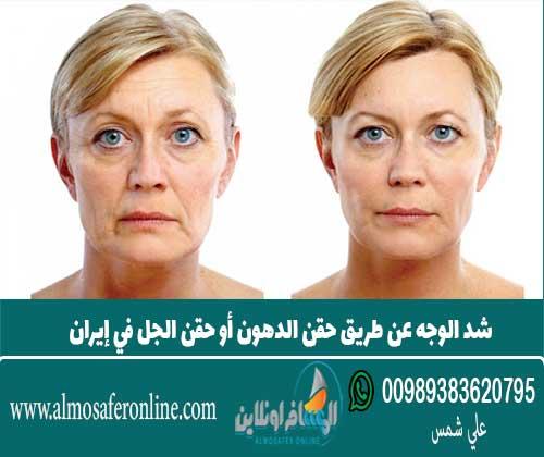 شد الوجه عن طريق حقن الدهون أو حقن الجل في إيران